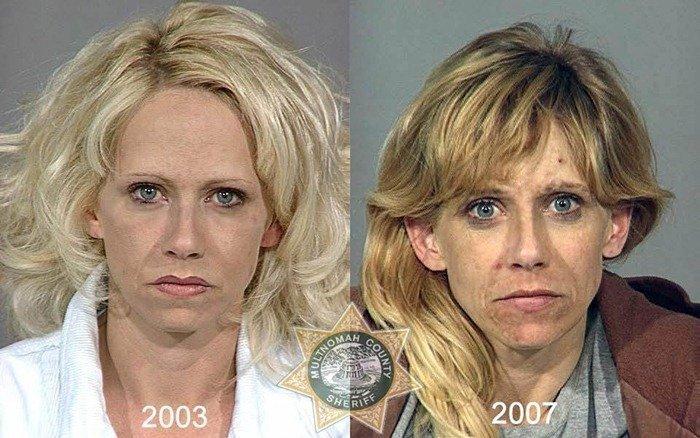 prima dopo foto droga 13 - droghe pesanti: ecco le foto del prima e del dopo dell'uso di eroina e cocaina